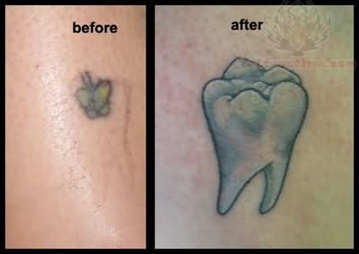 Molar Tattoo Images Amp Designs
