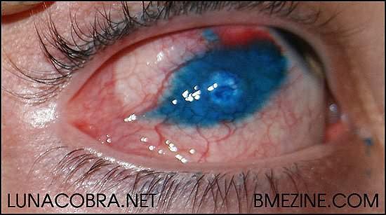 Blue tattoo inside the eye for Eyeball tattoo pics