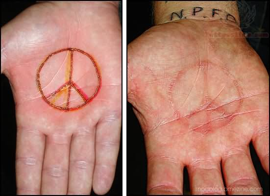 Palm scarification any input from you lovely people for Healing hand tattoo